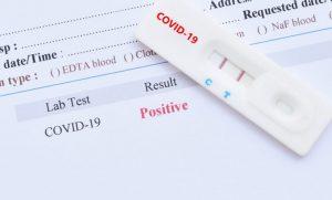 Covid Leeds PCR Test